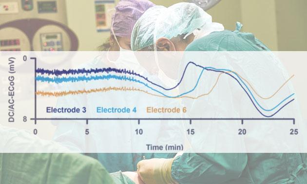 """Neurologen messen erstmals """"Todeswelle"""" im menschlichen Gehirn"""