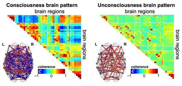 Mediziner finden Bewusstseinsmarker bei Wachkomapatienten