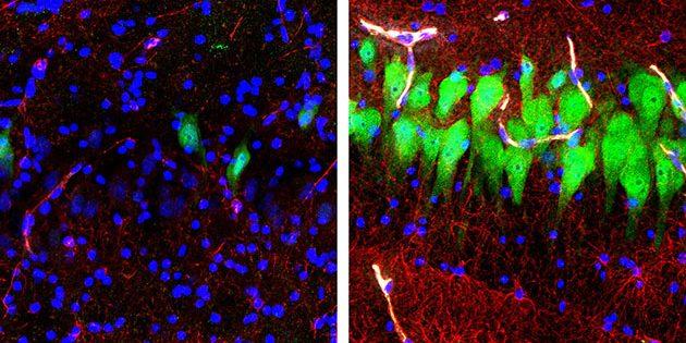 Während Neuronen (grün), Astrozyten (rot) und Zellkerne (Blau) im Hippocampus des unbehandelten Gehirns eines seit 10 Stunden toten Schweins absterben und zerfallen (links) gelang es Yale-Wissenschaftlern nun diese durch den Einsatz einer Ersatzflüssigkeit noch Stunden nach dem Tod der Tiere zu reaktivieren (r.). Copyright: Stefano G. Daniele & Zvonimir Vrselja; Sestan Laboratory; Yale School of Medicine