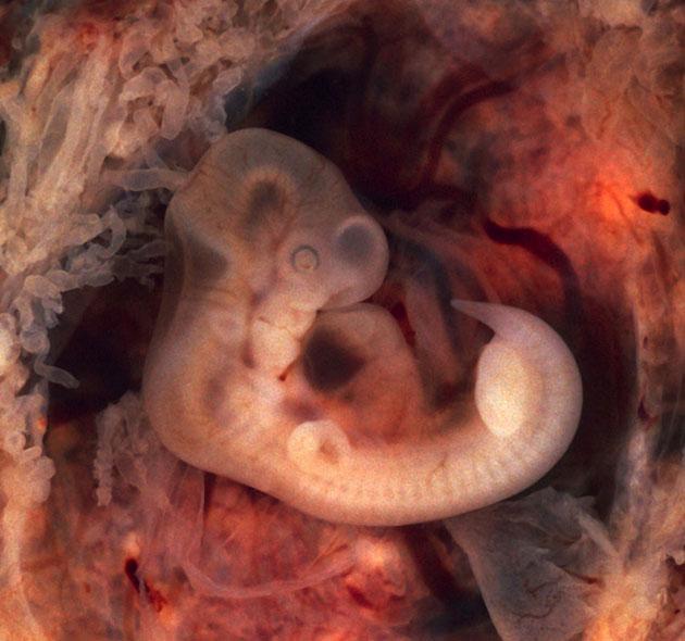Symbolbild: Menschlicher Embryo in der 5. Woche. Copyright: Ed Uthman, Gemeinfrei