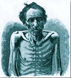 Historische Zeichnung eines bereits abgemagerten Tuberkulose-Patienten Copyright: unbek.