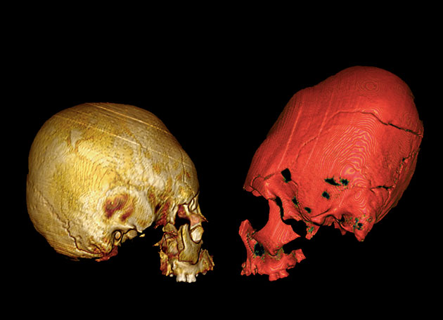 Archäologen finden Beweise für künstliche Schädeldeformation im Kroatien des 5. und 6. Jahrhunderts