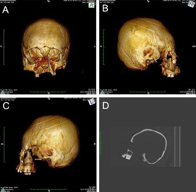 CT-Scans des Turmschädels. Copyright/Quelle: M. Kavka / Pinhasi, Novak et al., 2019