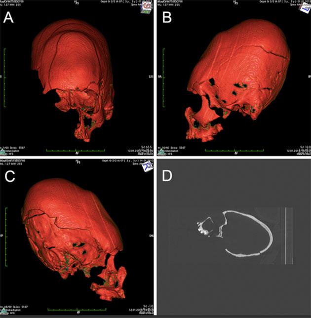 CT-Scan-Rekonstruktion des Langschädels aus der Grabgrube von Hermanov Vinograd. Copyright/Quelle: M. Kavka / Pinhasi, Novak et al., 2019
