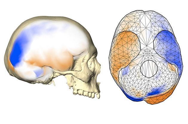 Das gemeinsame Asymmetriemuster des Gehirns wird an einem menschlichen Endocast (Abguss des inneren knöchernen Gehirnschädels) von der Seite (links) und von unten (rechts) gezeigt. Dieses Muster umfasst eine stärker nach hinten ragende linke Gehirnhälfte und eine stärker nach vorne ragende rechte Gehirnhälfte mit lokalisierten größeren Oberflächenbereichen (orange) auf einer Gehirnhälfte im Vergleich zu entsprechenden kleineren Bereichen (blau) auf der anderen Hemisphäre. Es beinhaltet auch unterschiedliche Projektionen der Kleinhirnhälften und der Schläfenlappenpole. Copyright: Simon Neubauer, CC BY-NC-ND 4.0