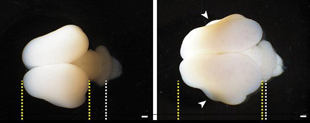 Im Vergleich: Das normale Gehirn eines Weißbüschelaffen-Fötus (l.) und das gleichalte, nun jedoch unter dem Einfluss des menschlichen ARHGAP11B-Gens entwickelte Hirn. Die gelben Linien markieren die Grenzen des zerebralen Kortex, die weißen Linien die des sich entwickelnden Kleinhirns. Copyright: Heide et al. / MPI-CBG