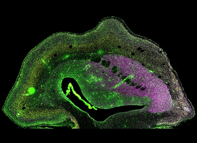 Mikroskopische Aufnahme eines Hirnhälften-Schnitts eines 101 Tage alten ARHGAP11B-transgenen Weißbüschelaffen-Fötus. Verschiedene neuronale Populationen sind durch Immunhistochemie (magenta, gelb, grün) sichtbar gemacht. Die Zellkerne sind weiß dargestellt. Copyright: Heide et al. / MPI-CBG