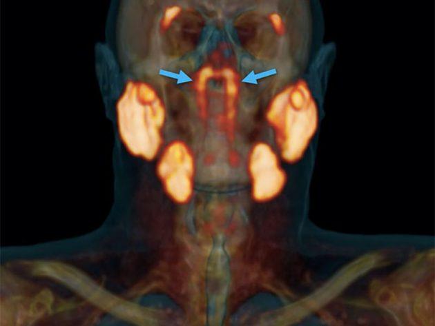 Mit einem neuen Scan-Verfahren entdeckten niederländischen Mediziner zwei bislang unbekannte Speicheldrüsen hinter dem Nasenrachen. Copyright/Quelle: Valstar et al., Radiotherapy and Oncology, 2020