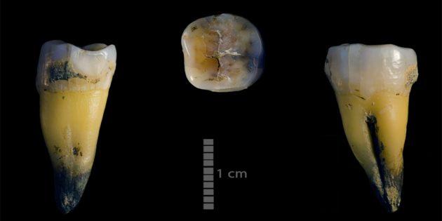 Der in der Bacho-Kiro-Höhle zusammen mit den ersten Steinwerkzeugen aus dem Jungpaläolithikum gefundene unterer Backenzahn. Die Analyse desErbguts dieses Individuums deutet darauf hin, dass er einen Neandertal-Vorfahren hatte. Copyright: MPI-EVA/ Rosen Spasov